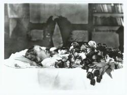Anna Ancher på dødslejet